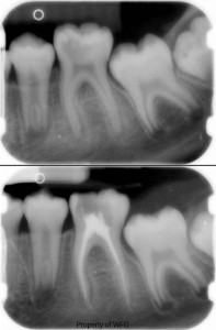 Root Canal Before & After